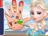 Elsa. Hand doctor